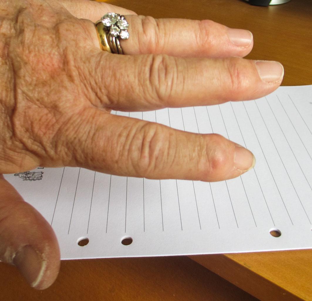 artros i fingrarna